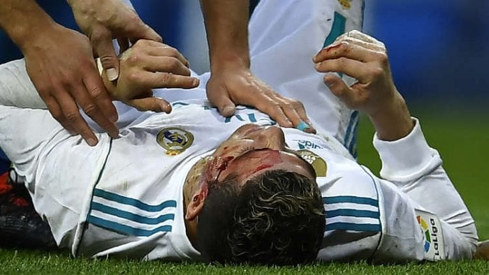 Ronaldo suffers nasty bloodied cut to the head & uses physio's mobile phone to assess the damage!