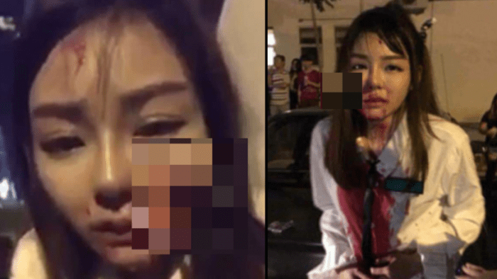 Teenager left with knife stuck in her face after robbed in Malaysia
