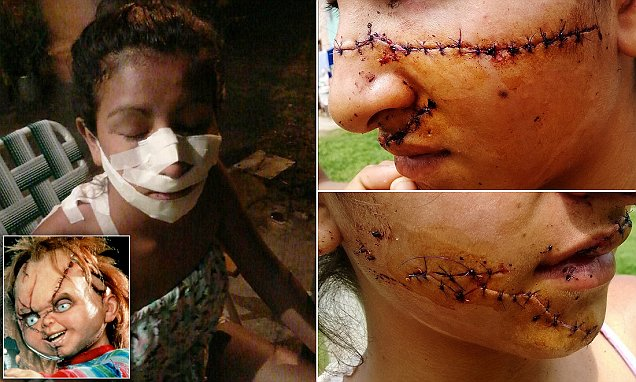 Pretty Argentinian teenage girl Julia Alvarez left disfigured after knife attack by two jealous girls
