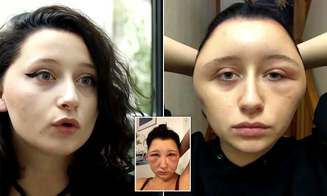 Woman's severe allergic reaction to hair dye saw her head almost DOUBLE in size
