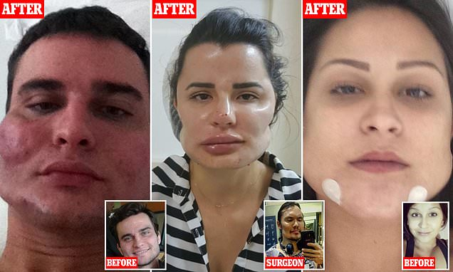 Disfigured for life by botched beauty treatments: Patients reveal their distorted features as dozens come forward to sue Brazilian plastic surgeon who carried out irreversible procedures