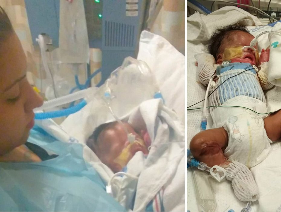 Baby born without skin in San Antonio in stable condition — but not out of the woods